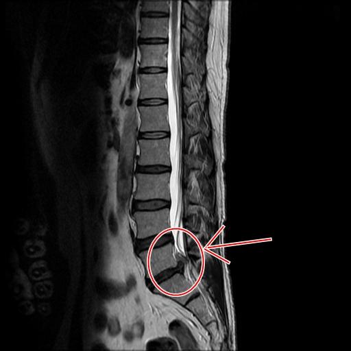 腰椎椎間板ヘルニアMRI画像