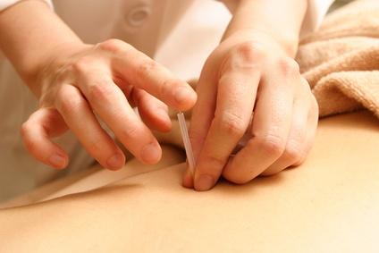 鍼治療の施術風景