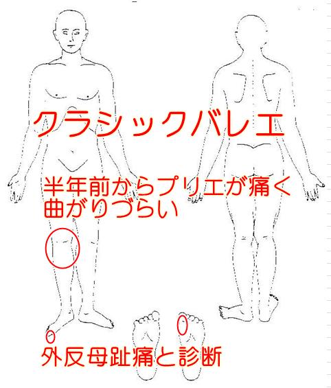 痛みの箇所のイラスト