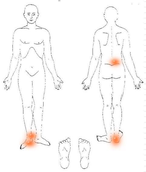 痛みの分布図
