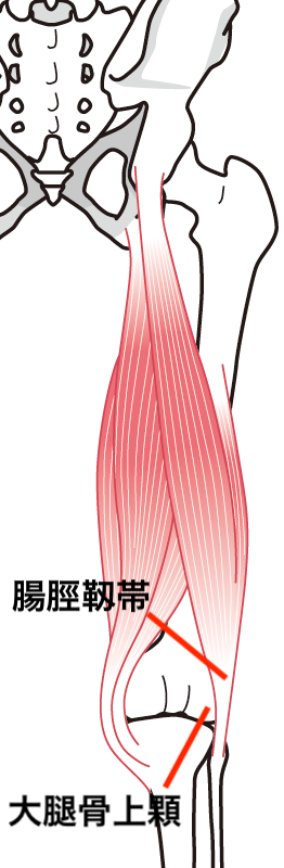 腸脛靭帯イラスト