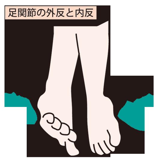 足首の捻挫の後遺症