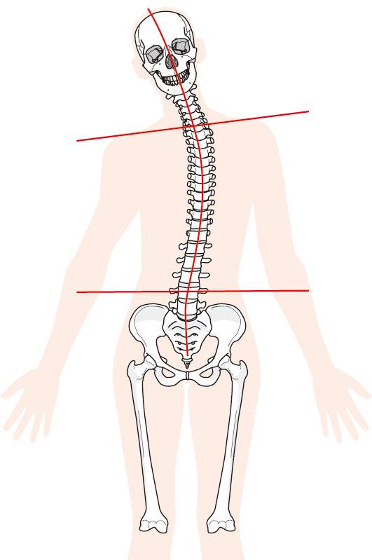 体の歪みの図