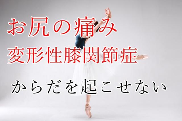 バレエでのお尻の痛みと変形性膝関節症