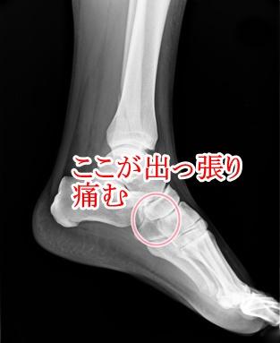 外脛骨の画像